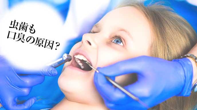 虫歯を治療している女の子