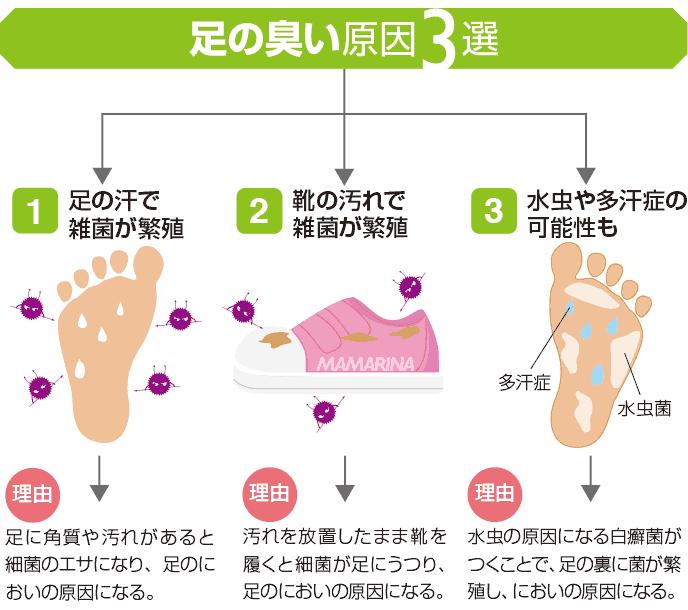 図解:子供の足が臭い原因4選